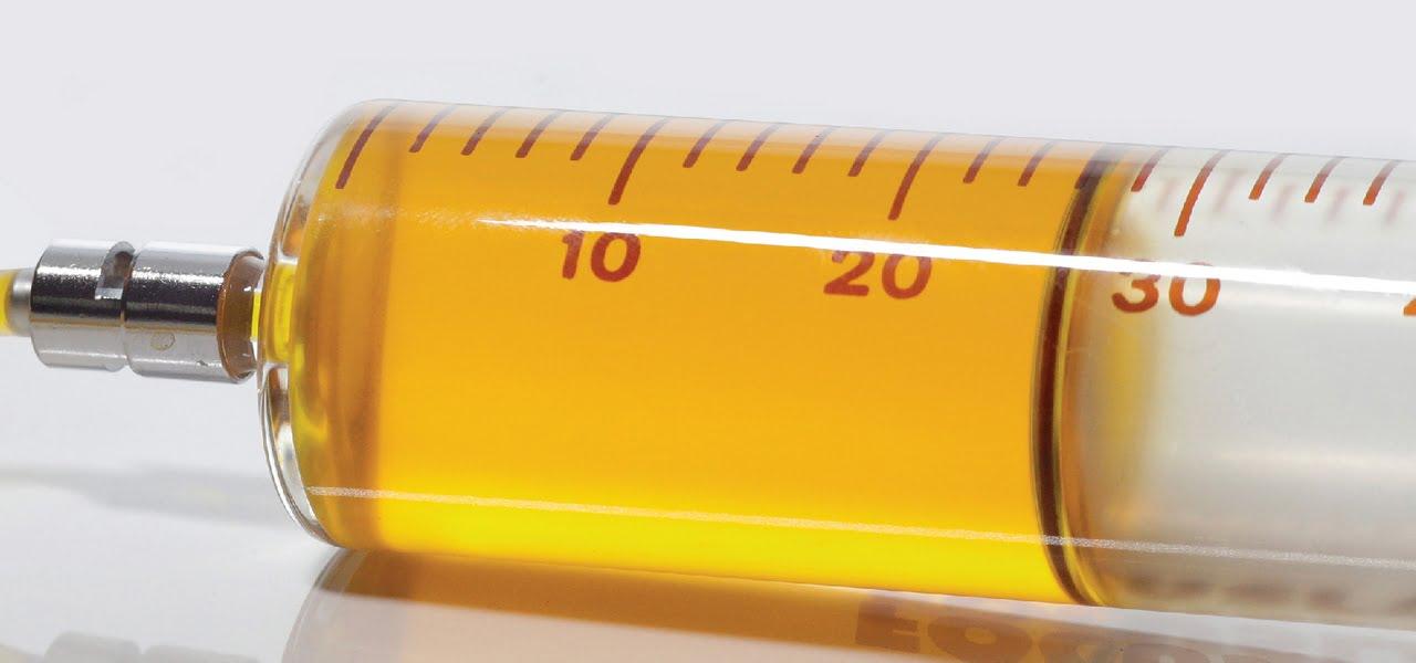 מעבדה אנליטית לשמן שנאים